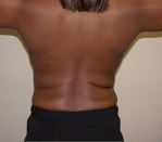 Liposuction Before and After Pictures Atlanta, GA