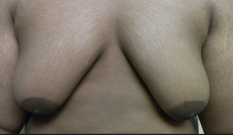 Gynecomastia Before and After Pictures Atlanta, GA