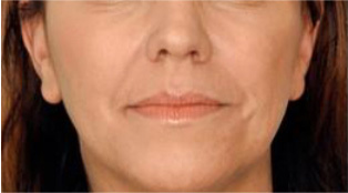 Soft Tissue Fillers Before and After Pictures Atlanta, GA
