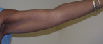 Arm Lift Before and After Pictures Atlanta, GA