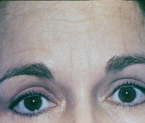 Botox Before and After Pictures Atlanta, GA