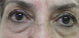 Blepharoplasty Before and After Pictures Atlanta, GA