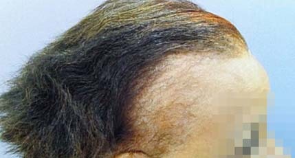 Hair Restoration for Women Before and After Pictures Atlanta, GA