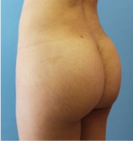 Brazilian Butt Lift Before and After Pictures Atlanta, GA