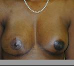 Breast Reconstruction in Atlanta, GA