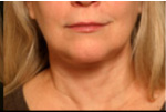 Facelift Before and After Pictures Atlanta, GA