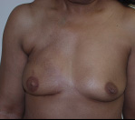 Breast Reconstruction in Atlanta, GA