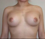 Breast Augmentation in Atlanta, GA