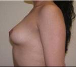 Breast Augmentation in Atlanta, GA
