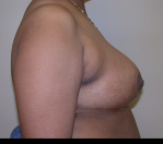 Breast Reduction Before and After Pictures Atlanta, GA