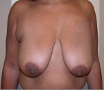Breast Lift in Atlanta, GA