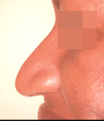 Rhinoplasty Before and After Pictures Atlanta, GA