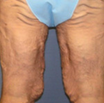 Thigh Lift Before and After Pictures Atlanta, GA