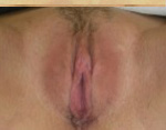 Labiaplasty Before and After Pictures Atlanta, GA