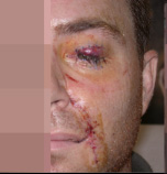Wound Care Before and After Pictures Atlanta, GA