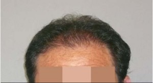 Hair Restoration for Men Before and After Pictures Atlanta, GA